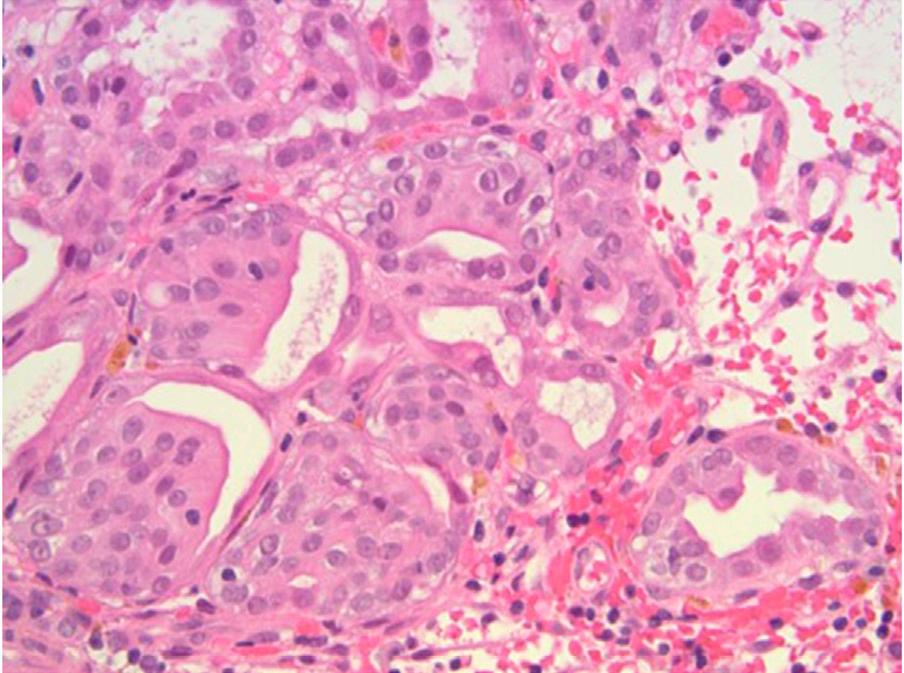 膀胱瘤样病变详述(五)