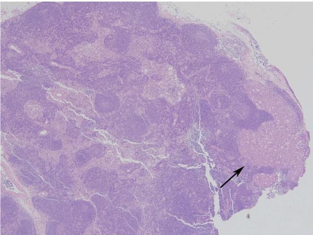 乳腺导管原位癌 vs. 微小浸润癌