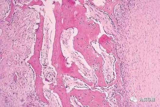 骨化性肌炎与指趾纤维骨性假瘤
