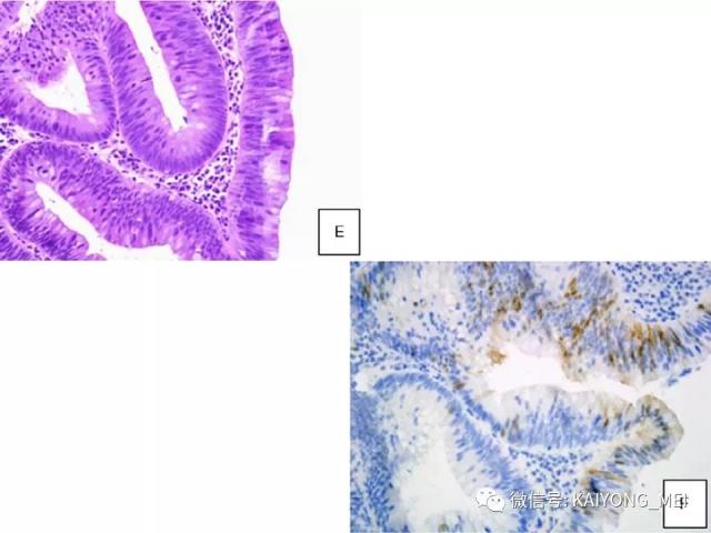宫颈腺性病变的病理诊断及进展(一)