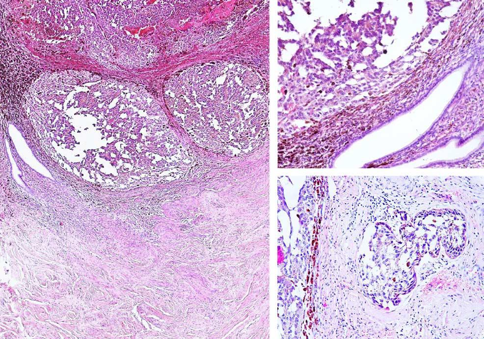 读文献,开眼界-非妇科来源肿瘤继发累及宫颈的病例研究