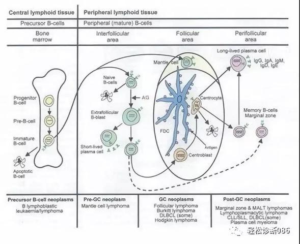前体淋巴组织肿瘤(1)