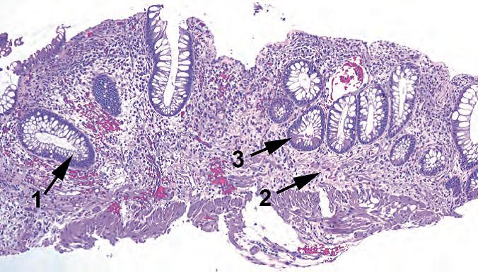 外科病理学实践:诊断过程的初学者指南   第8章 结肠
