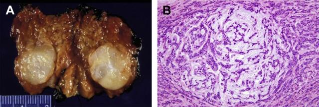 文献复习:儿童涎腺肿瘤