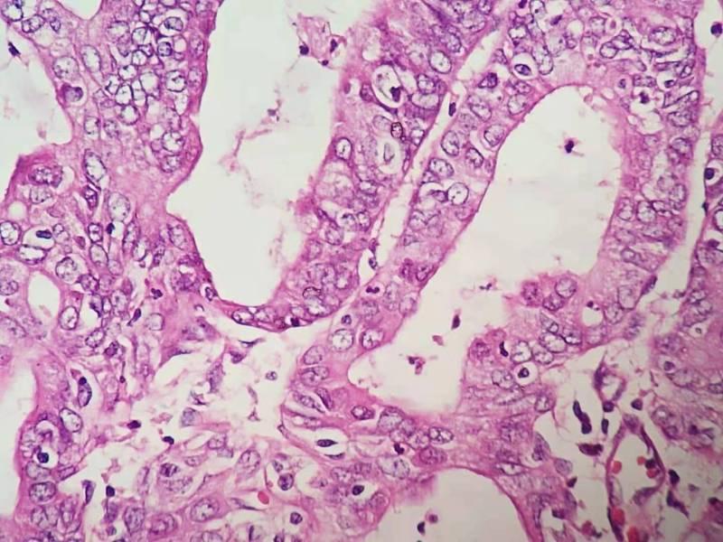 有点特殊的子宫内膜癌病例(五十九)