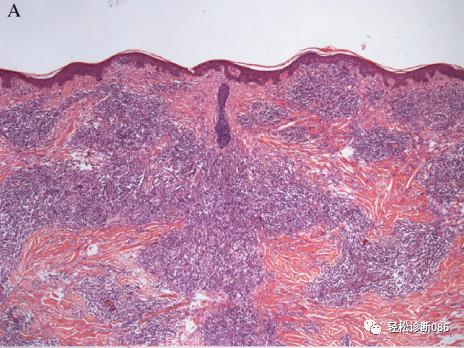 滤泡辅助T细胞(TFH)及其相关淋巴瘤(8)