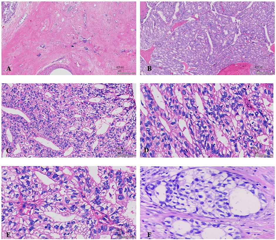有奖读片病例整理:病例9 富于糖原透明细胞癌