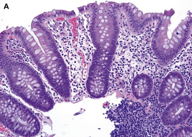 """活检标本中的""""慢性结肠炎""""的临床病理学特征及鉴别诊断(一)"""