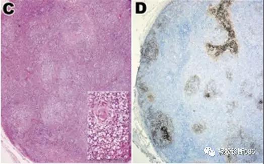 滤泡辅助T细胞(TFH)及其相关淋巴瘤(4)