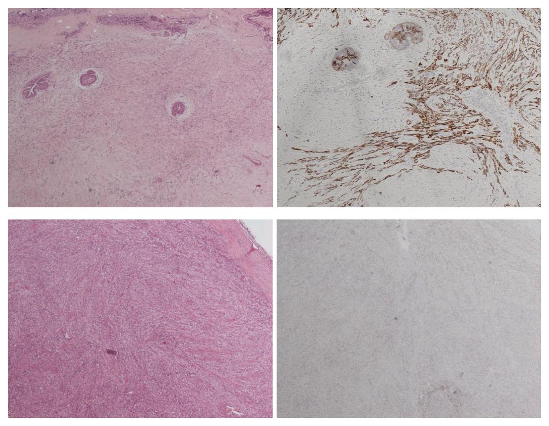 无明显上皮分化的乳腺化生性癌研究及诊断策略