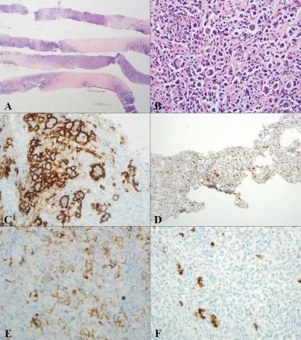 具有Reed-Sternberg样细胞的非霍奇金淋巴瘤的病理诊断