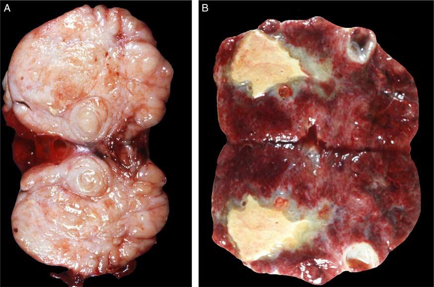 文献精读-卵巢无性细胞瘤(一)