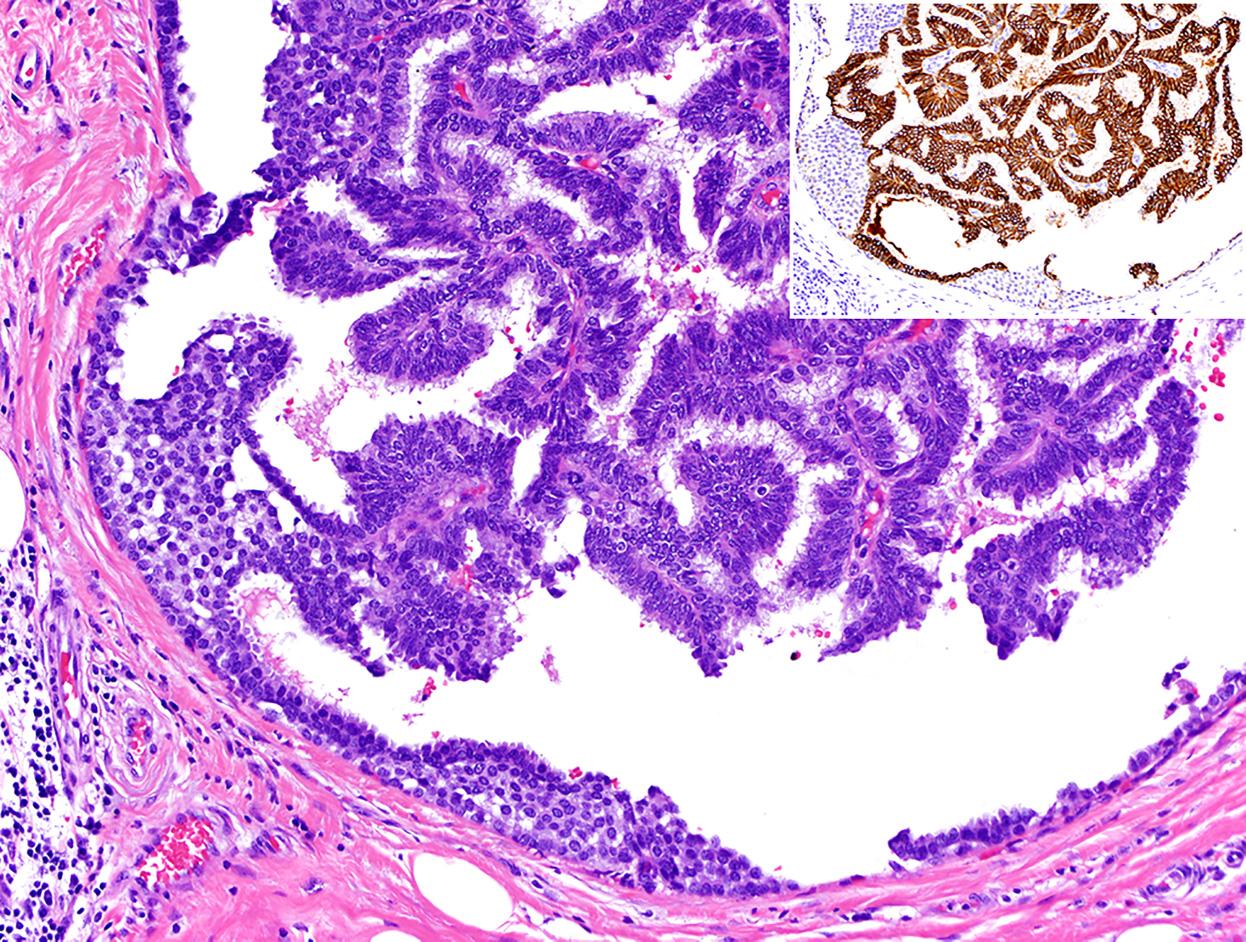 乳腺乳头状肿瘤概览(七)