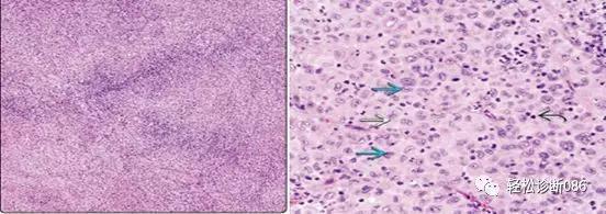 组织细胞起源疾病(7)——肿瘤性病变(HS)
