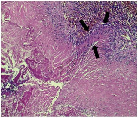 成人I型先天性肺气道畸形(CPAM)基础上发生浸润性黏液腺癌一例