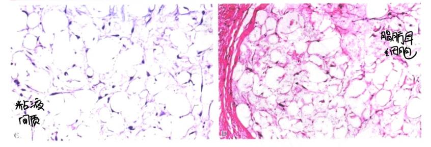 脂肪组织肿瘤:来自一个初学者的笔记