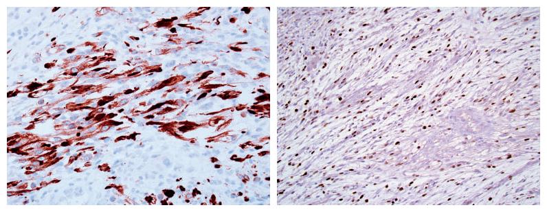 以例示病-肉瘤样脑膜瘤的诊断策略及陷阱