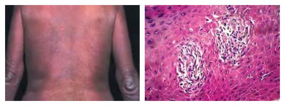 皮肤病之病理表现(二)