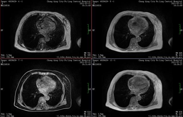 胰腺导管内乳头状黏液性肿瘤伴浸润性癌病例分享