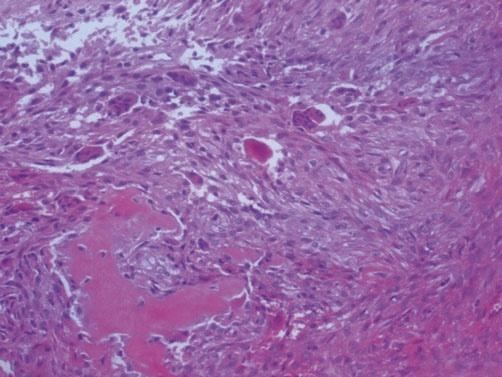 从《ABC》聊《骨病理知识点》(四):《棕色瘤》与《黄色瘤》同台演出