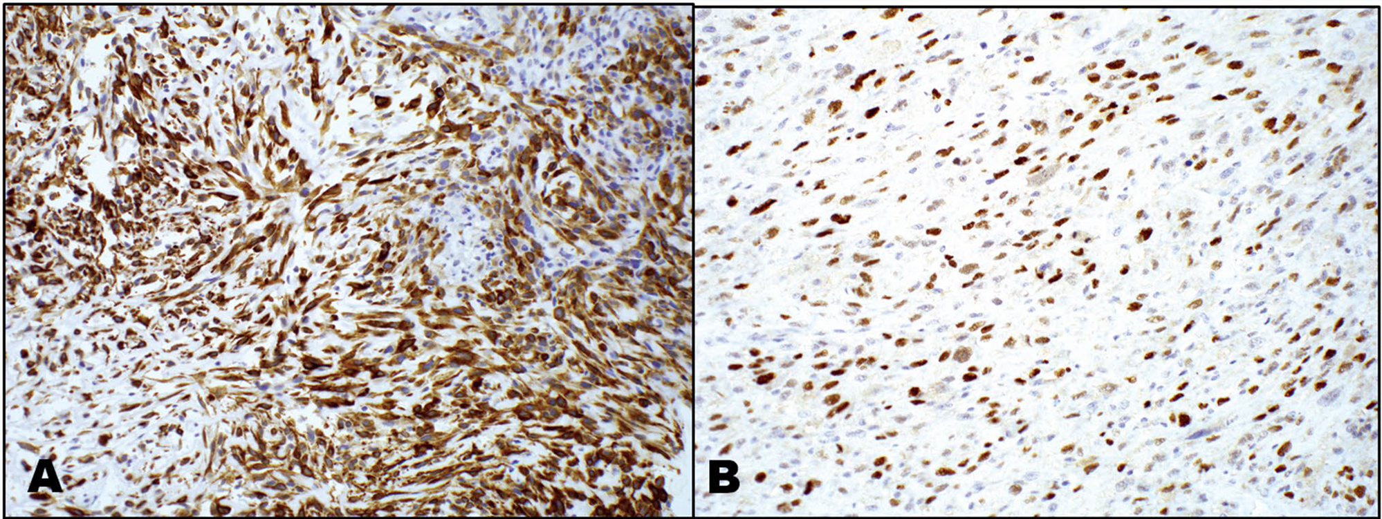 以例学病-喉部梭形细胞鳞癌病理诊断要点(二)