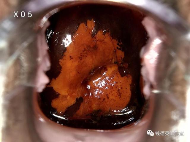 钱医生札记 | 宫颈锥切标本病理检查探讨