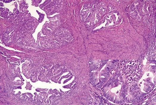 非乳腺来源的腋窝淋巴结转移性肿瘤示例