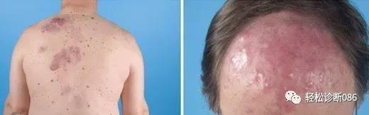 皮肤淋巴瘤(15)——B-NHL(PCFCL)