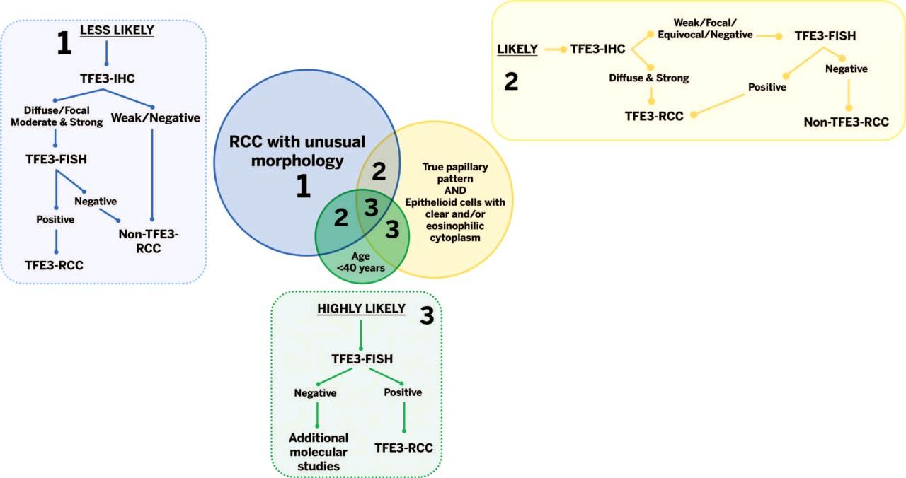读文献,学经验-TFE3融合相关肾细胞癌的诊断策略
