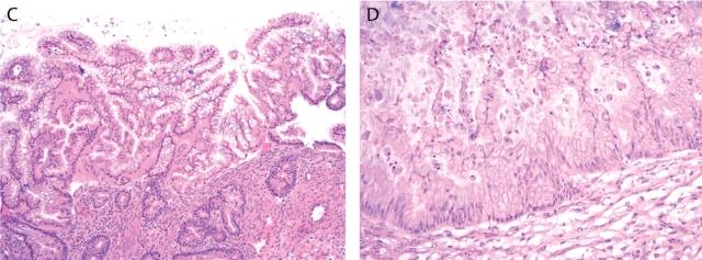 卵巢上皮性肿瘤冰冻诊断要点及陷阱(二)