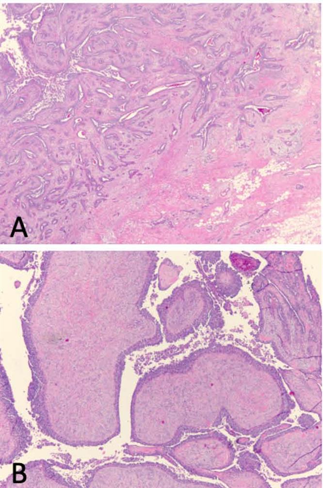 读文献,开眼界-发生于乳腺的乳头状汗管囊腺癌