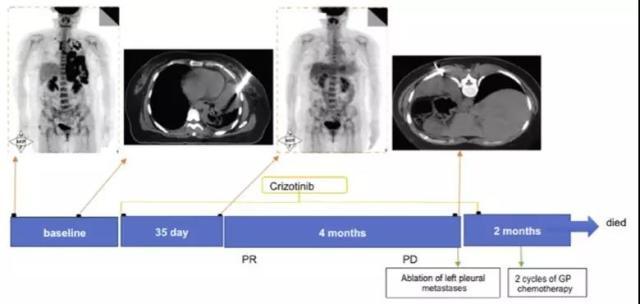 ROS1 病例半月谈 | ALK并ROS1双阳性肺鳞癌病例诊治解析