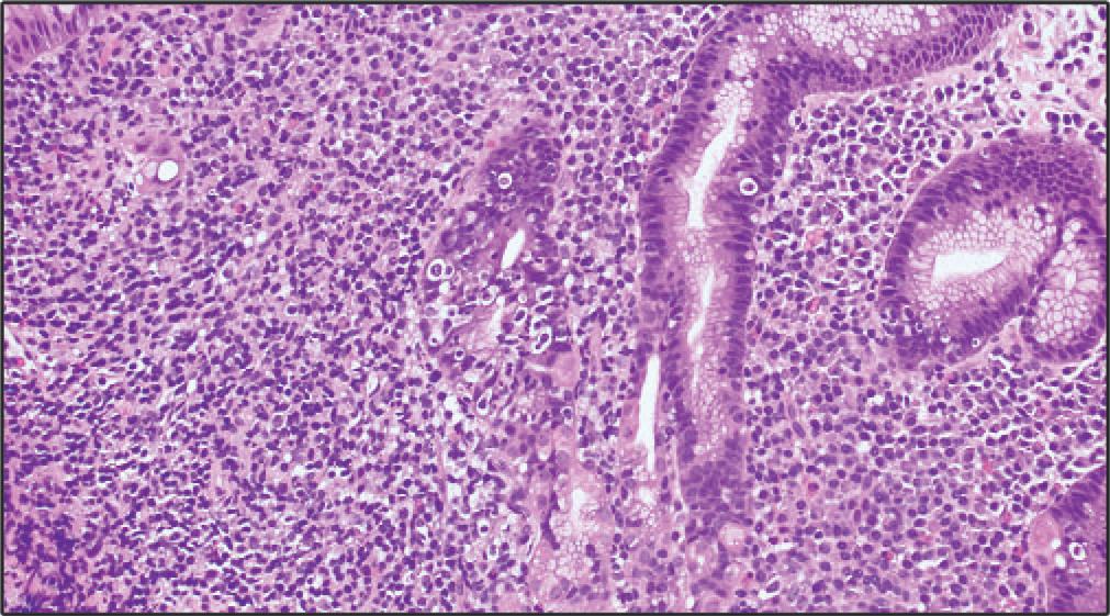 走马观花看胃肠道淋巴瘤(二)