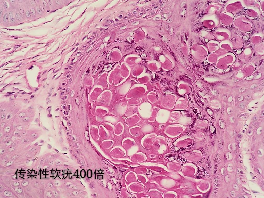 病理科工作札记(三十七)传染性软疣