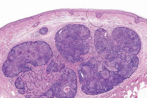 毛母细胞瘤