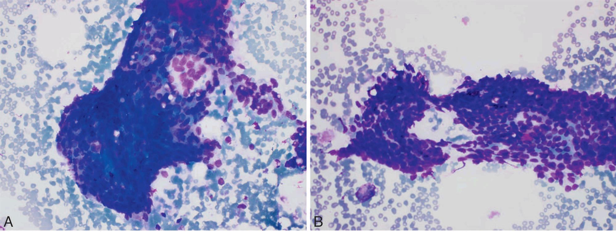 小穿刺,大用途-涎腺细胞性基底样肿瘤的细针穿刺(三)