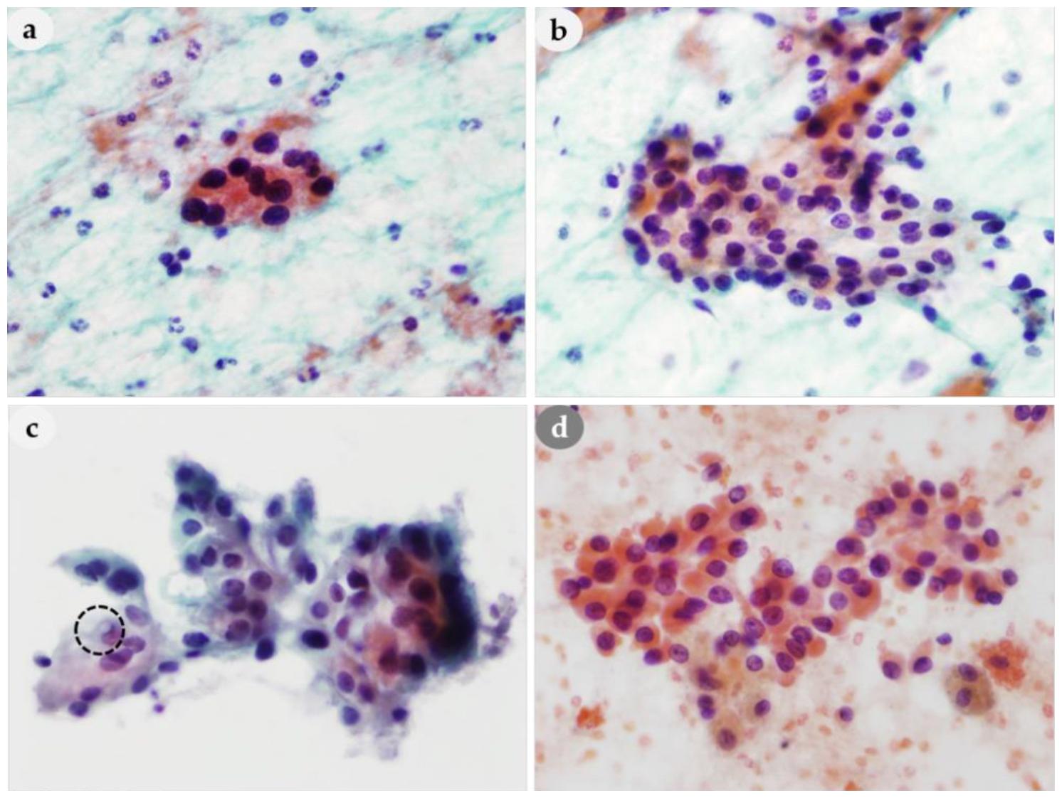 读文献,学病理-甲状旁腺病变的细胞学特征及鉴别