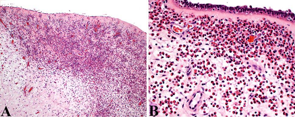 以例学病-鼻腔鼻窦炎性纤维性病变鉴别诊断要点详解(二)