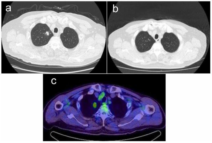 少见病例的不典型表现——肺NUT癌一例