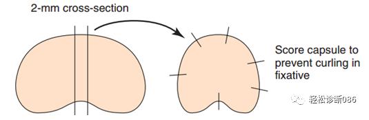 如何制作一张好的淋巴结HE切片(3)
