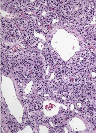 肺血管母细胞瘤样透明细胞间质肿瘤研究现况