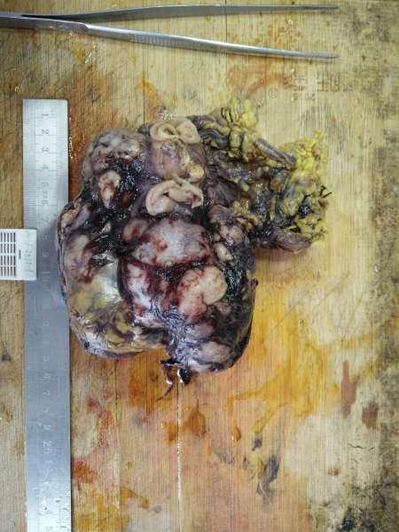 病理科工作札记(三十三)胃肠道间质瘤