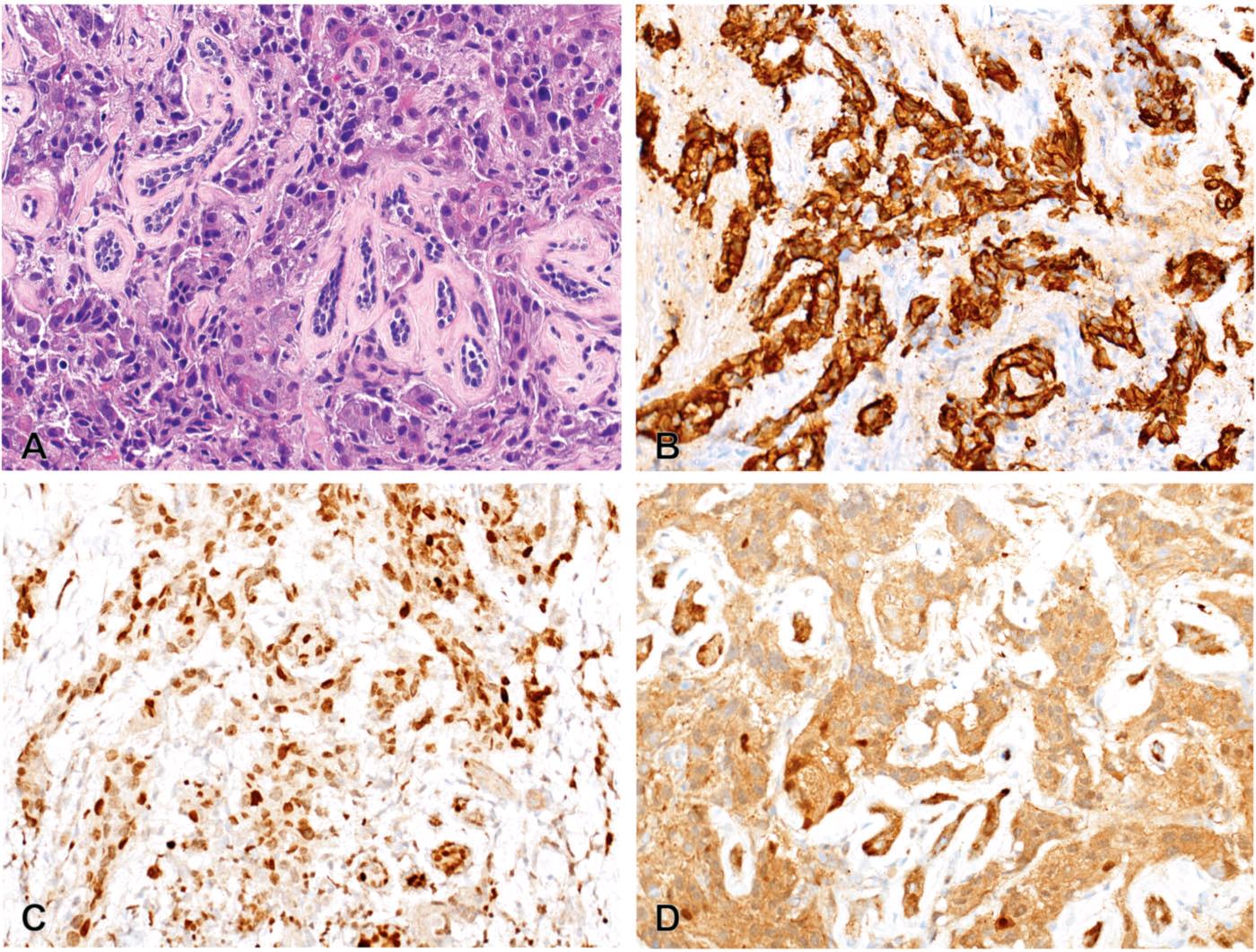 读文献,学病理-乳腺癌部分免疫组化详解(一)