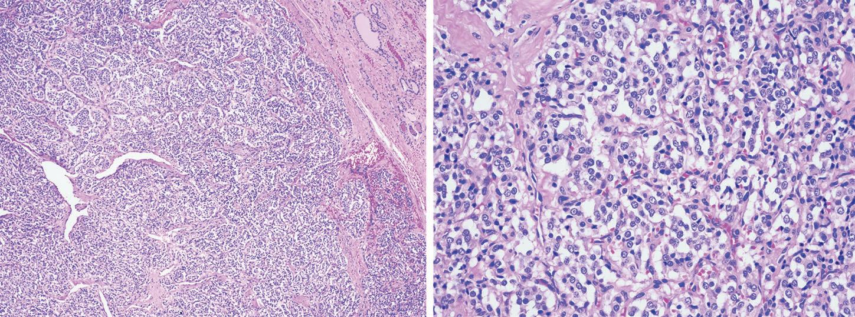 一例一病-甲状腺副节瘤
