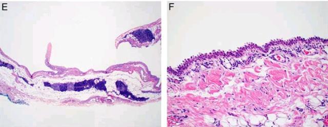 纵隔非肿瘤性囊肿(二)