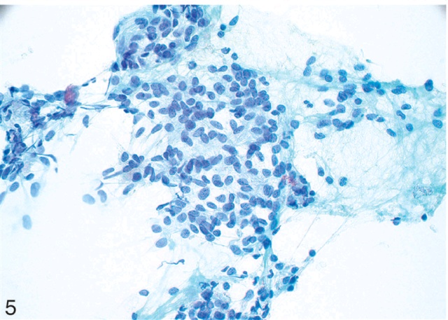 小穿刺,大用途-涎腺细胞性基底样肿瘤的细针穿刺(一)
