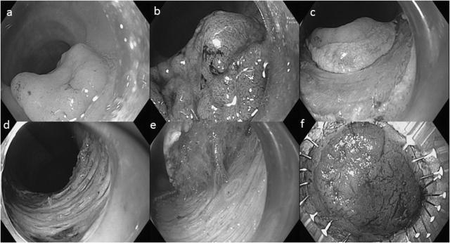 胃肠道内镜下切除标本之病理应知应会(一)
