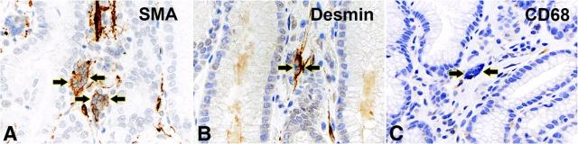 胃肠道间质多核巨细胞