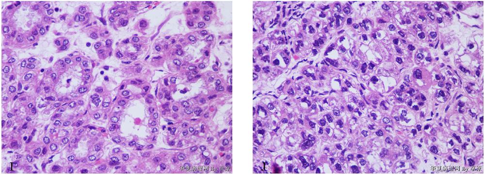 有奖读片病例整理:病例13 卵巢肝样癌