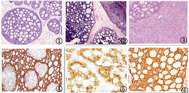 宫颈腺样囊性癌临床病理学特征
